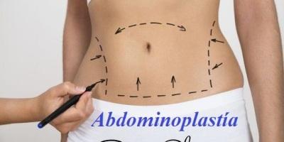 abdominoplastia dr alejandro porras ruiz