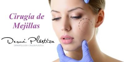 cirugía de mejillas dr alejandro porras ruiz los mochis