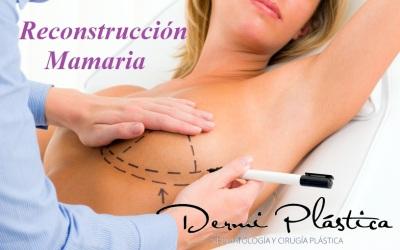 Reconstrucción mamaria dr alejandro porras ruiz