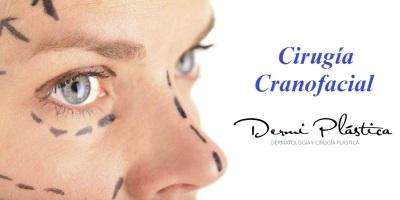 cirugia cranofacial dr alejandro porras ruiz